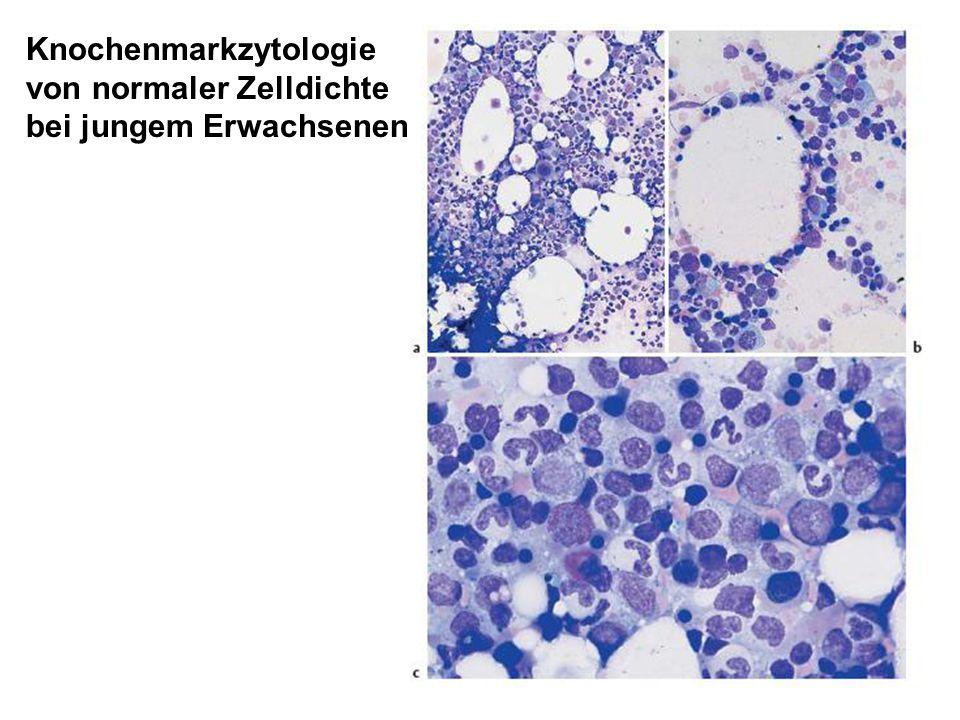 Knochenmarkzytologie von normaler Zelldichte bei jungem Erwachsenen