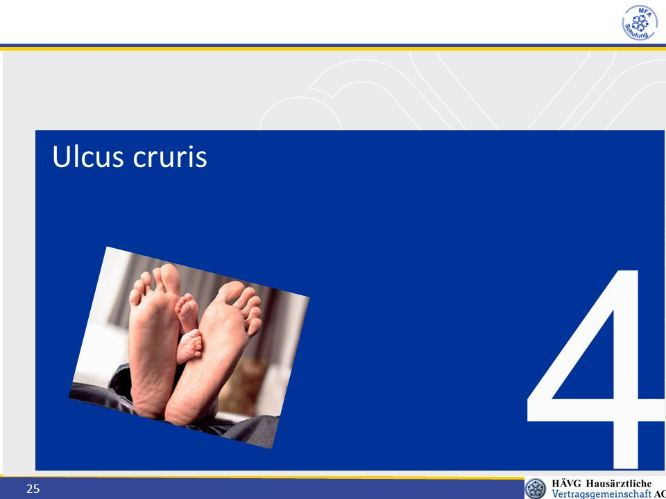 Ulcus cruris 4
