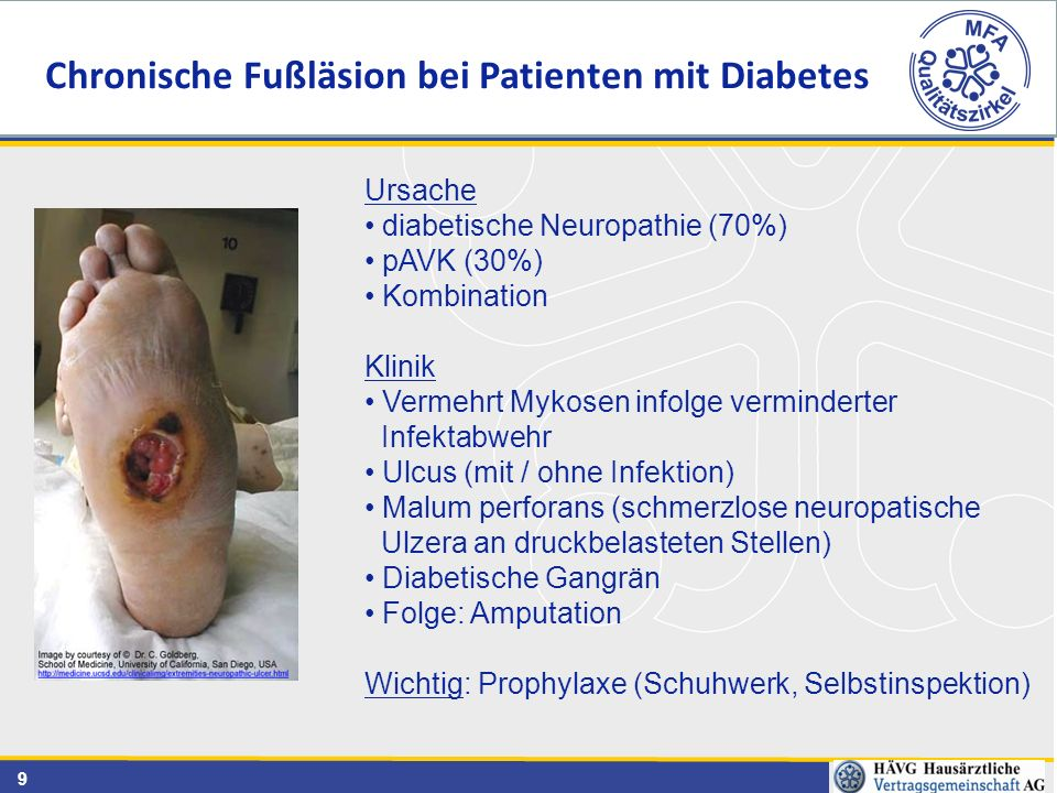 Chronische Fußläsion bei Patienten mit Diabetes