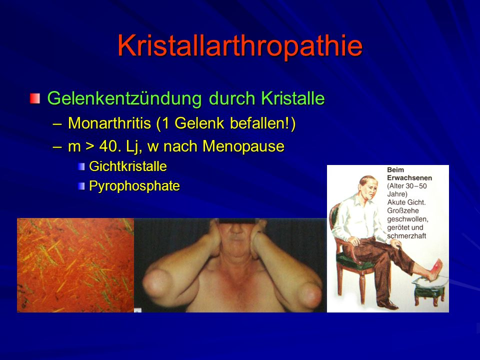 Kristallarthropathie
