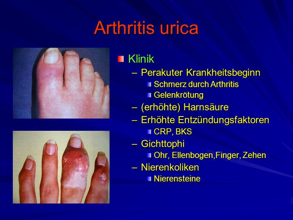 Arthritis urica Klinik Perakuter Krankheitsbeginn (erhöhte) Harnsäure