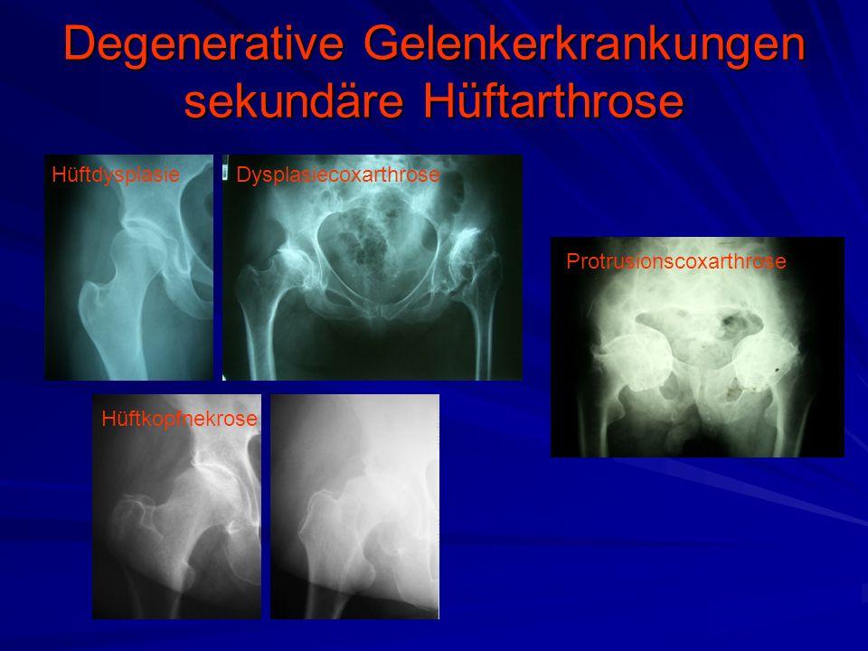 Degenerative Gelenkerkrankungen sekundäre Hüftarthrose