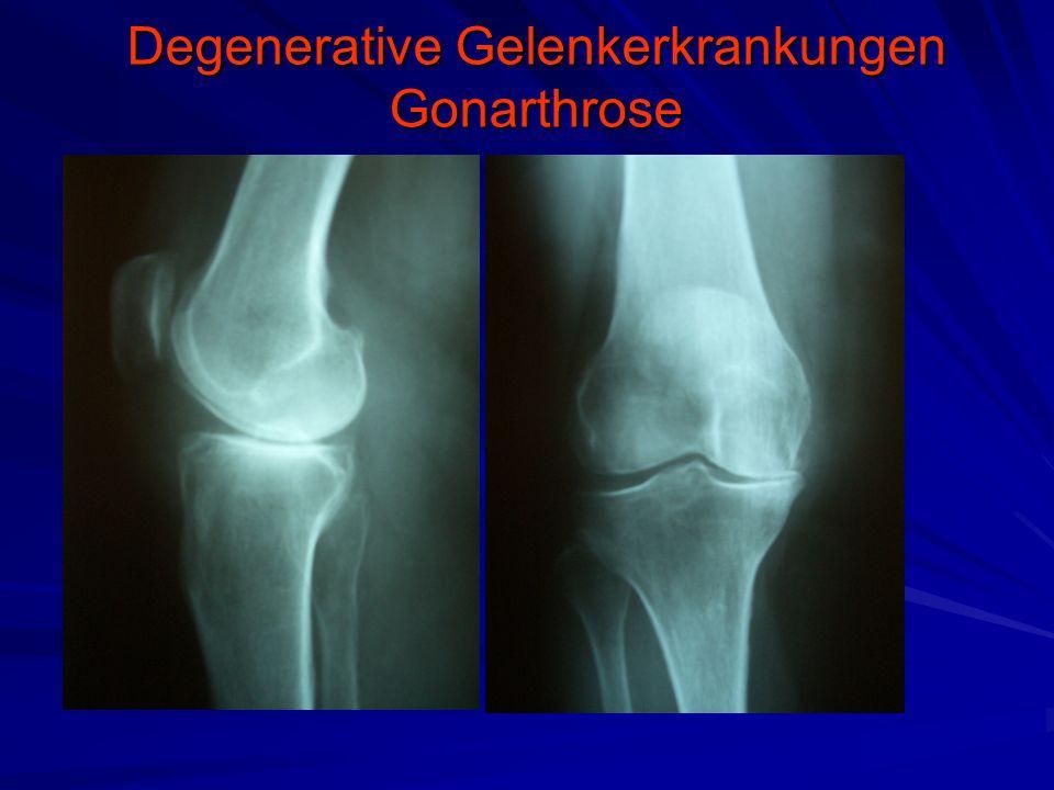 Degenerative Gelenkerkrankungen Gonarthrose