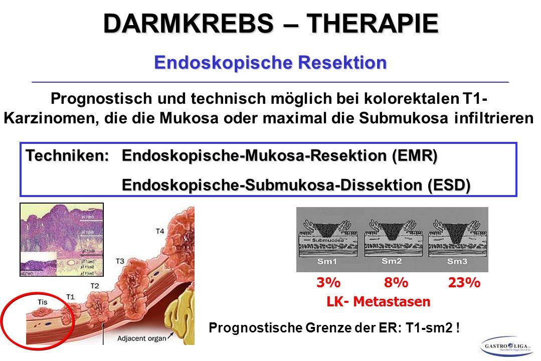 Endoskopische Resektion Prognostische Grenze der ER: T1-sm2 !