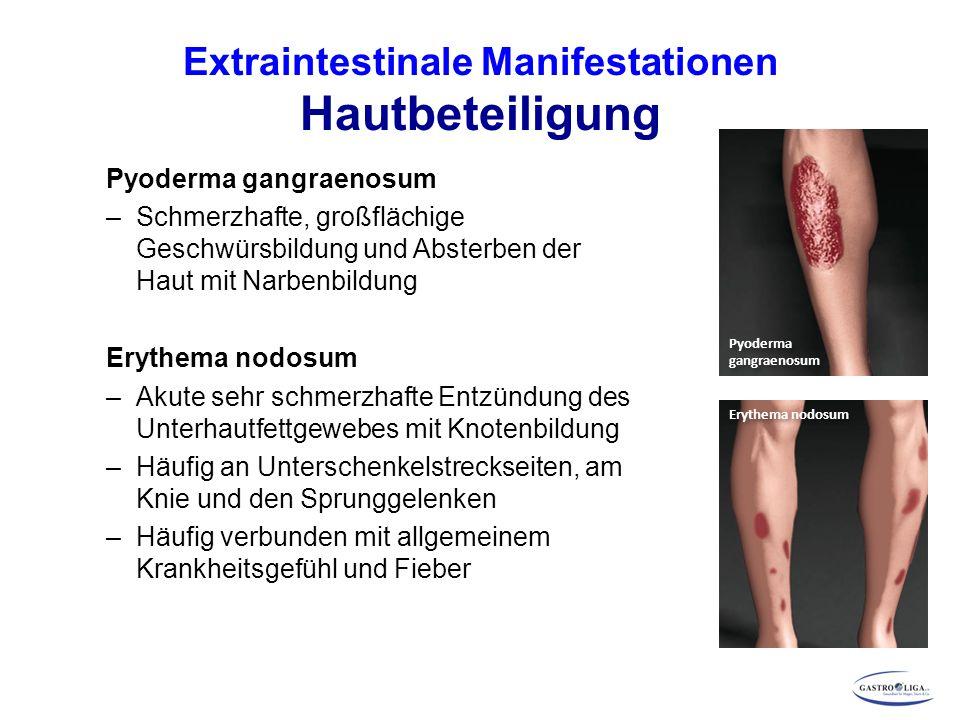 Extraintestinale Manifestationen Hautbeteiligung