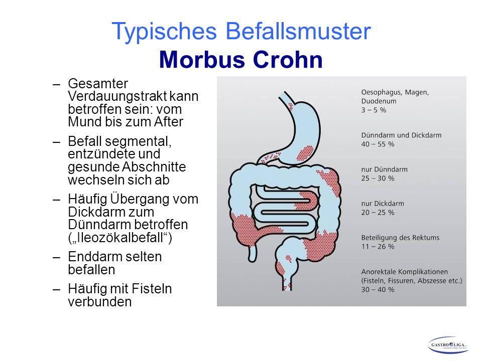 Großartig Dünndarm Anatomie Diagramm Zeitgenössisch - Anatomie Ideen ...