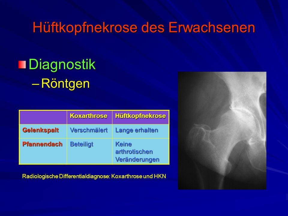 Hüftkopfnekrose des Erwachsenen