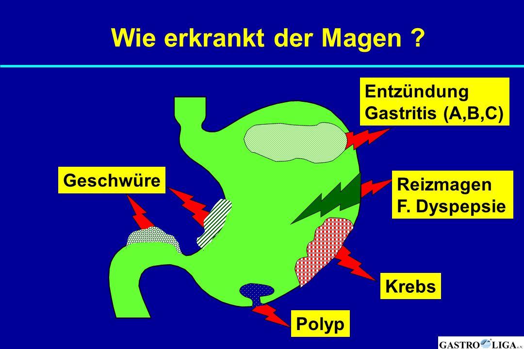 Wie erkrankt der Magen Entzündung Gastritis (A,B,C) Geschwüre