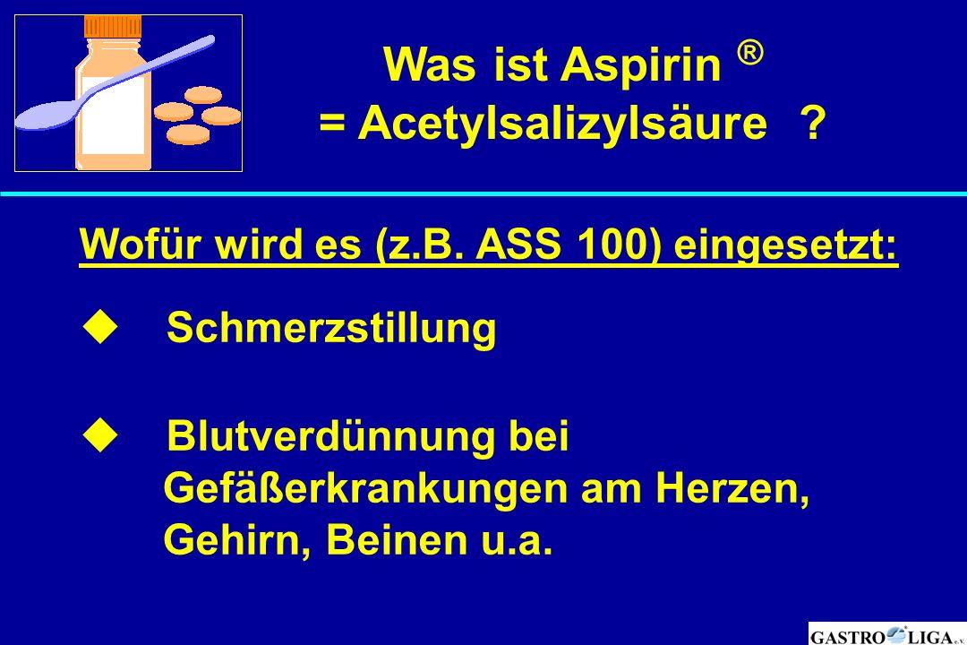 Was ist Aspirin ® = Acetylsalizylsäure