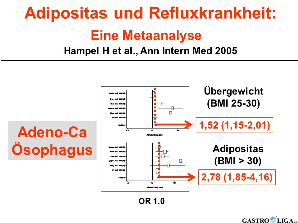Adipositas und Refluxkrankheit: Hampel H et al., Ann Intern Med 2005