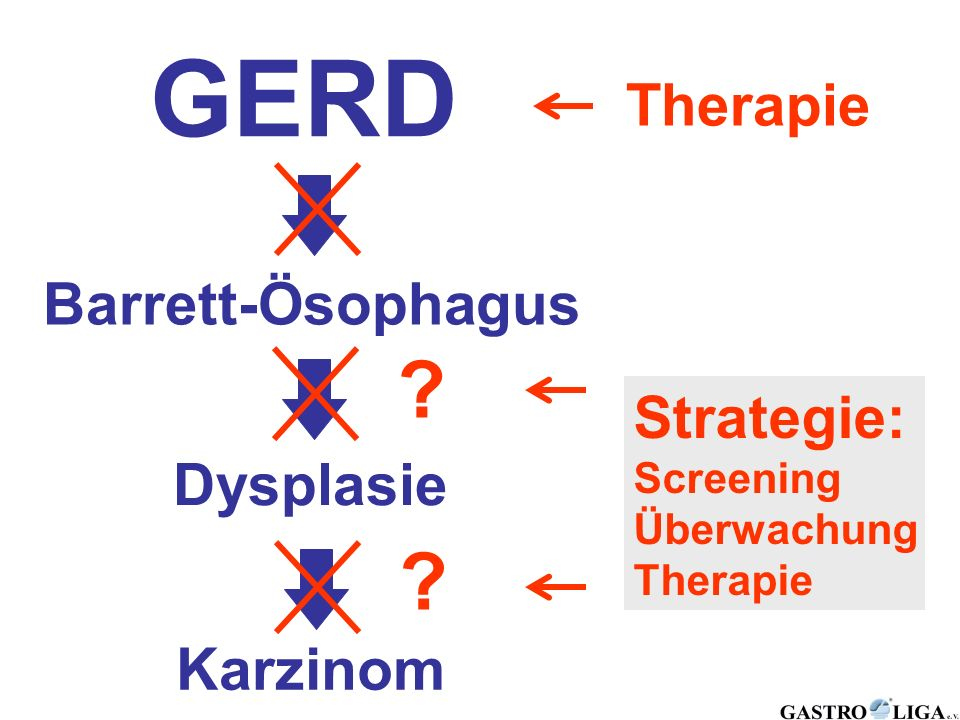 GERD Therapie Barrett-Ösophagus Strategie: Dysplasie Karzinom