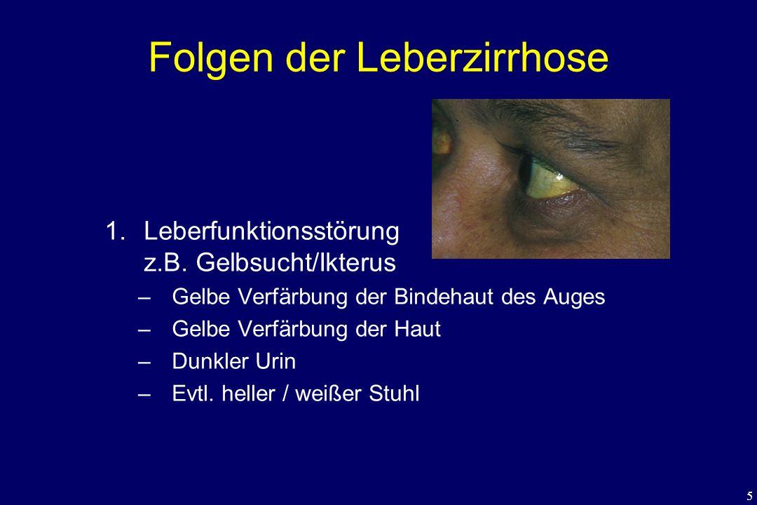 Folgen der Leberzirrhose