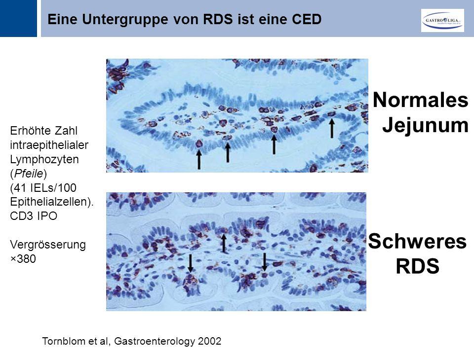 Normales Jejunum Schweres RDS Eine Untergruppe von RDS ist eine CED