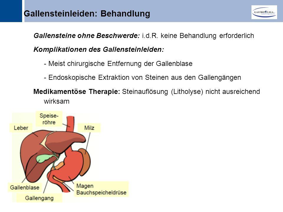 Gallensteinleiden: Behandlung