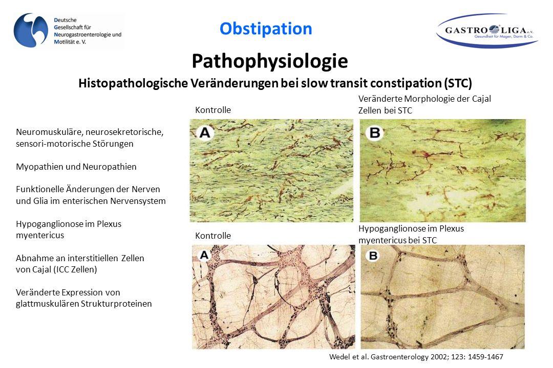 Histopathologische Veränderungen bei slow transit constipation (STC)