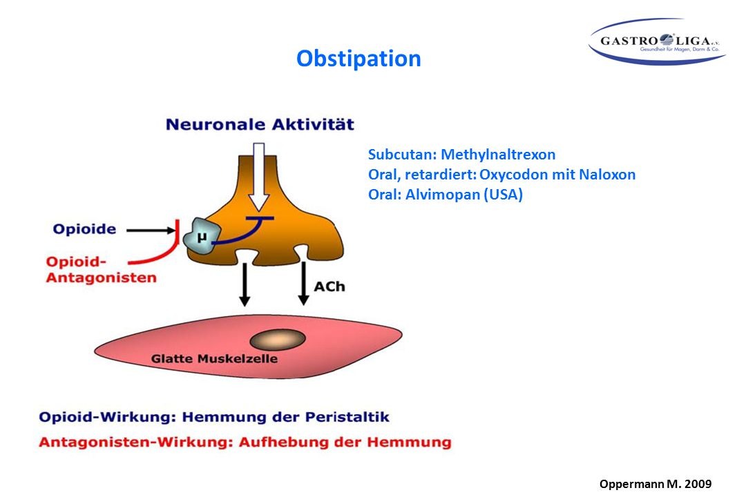 Obstipation Subcutan: Methylnaltrexon