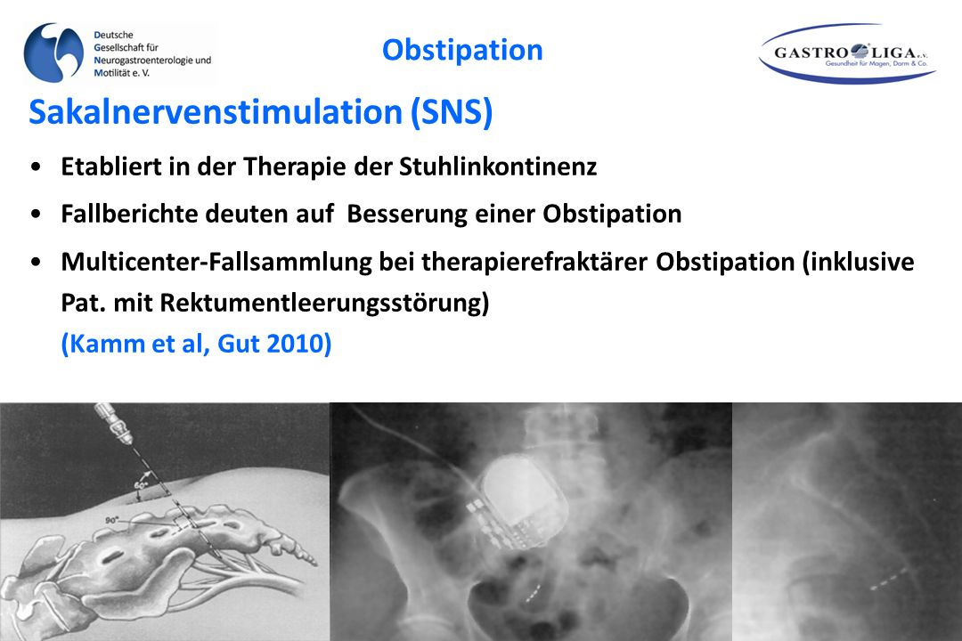 Sakalnervenstimulation (SNS)
