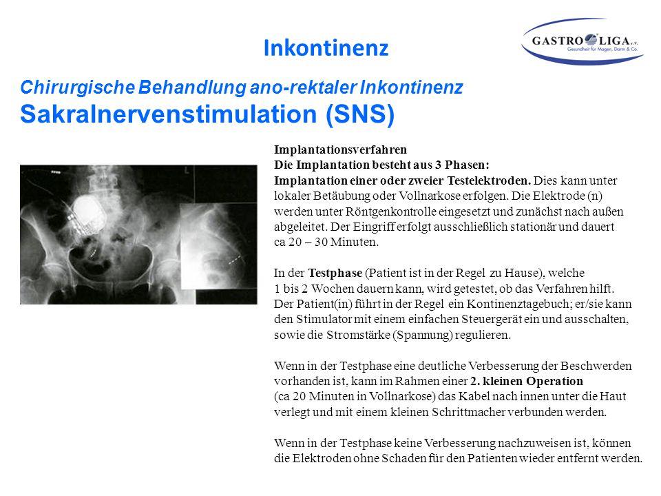 Inkontinenz Chirurgische Behandlung ano-rektaler Inkontinenz Sakralnervenstimulation (SNS)