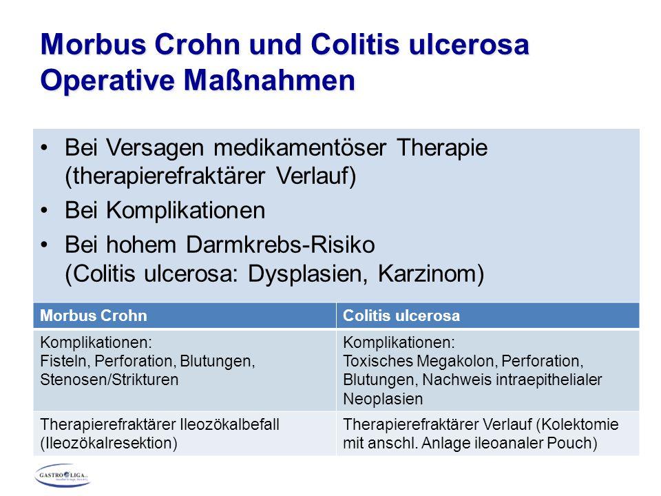Morbus Crohn und Colitis ulcerosa Operative Maßnahmen