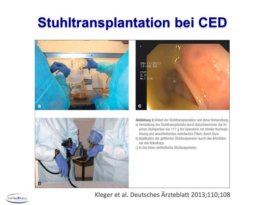 Stuhltransplantation bei CED