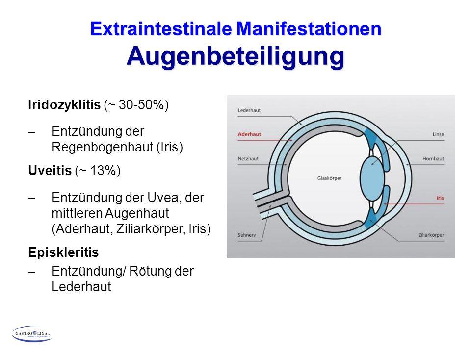 Extraintestinale Manifestationen Augenbeteiligung