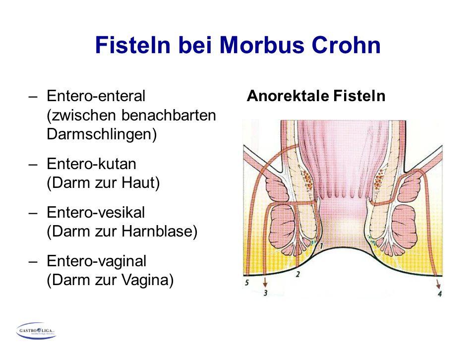 Fisteln bei Morbus Crohn