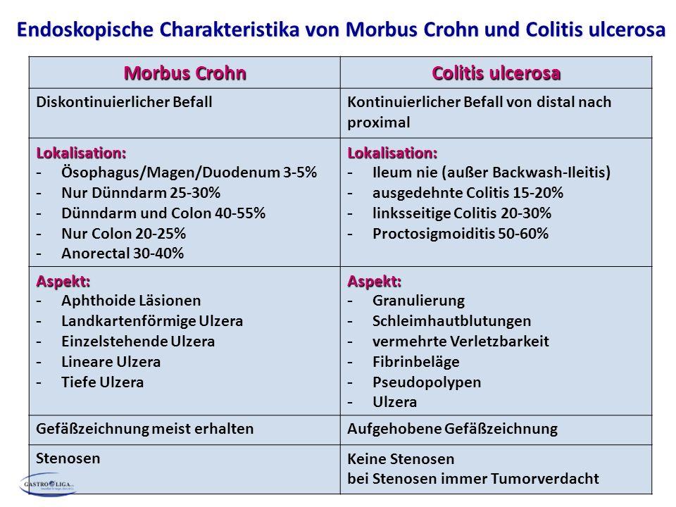 Endoskopische Charakteristika von Morbus Crohn und Colitis ulcerosa