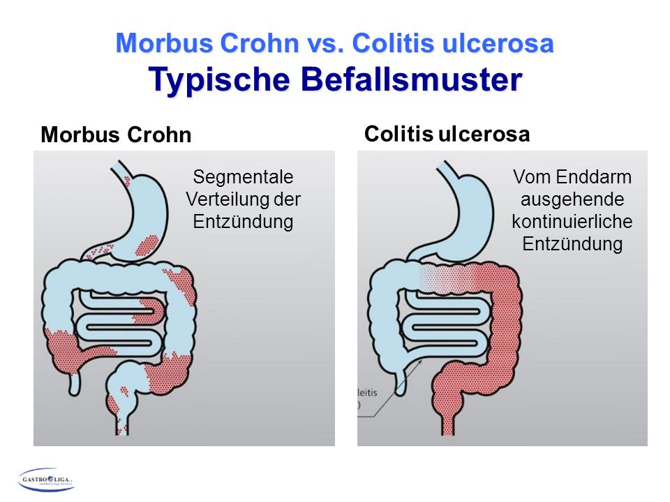 Morbus Crohn vs. Colitis ulcerosa Typische Befallsmuster