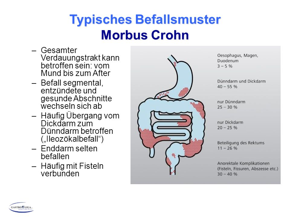 Typisches Befallsmuster Morbus Crohn