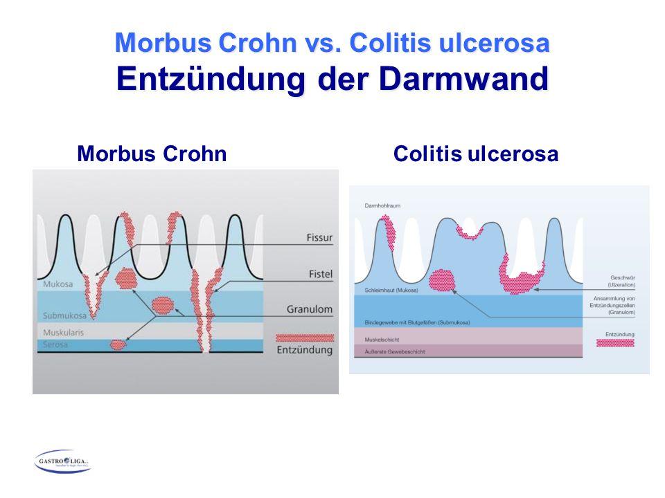 Morbus Crohn vs. Colitis ulcerosa Entzündung der Darmwand