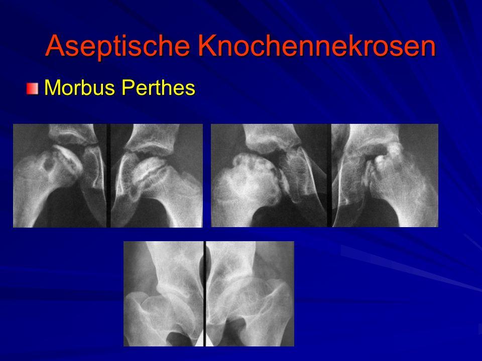 Aseptische Knochennekrosen