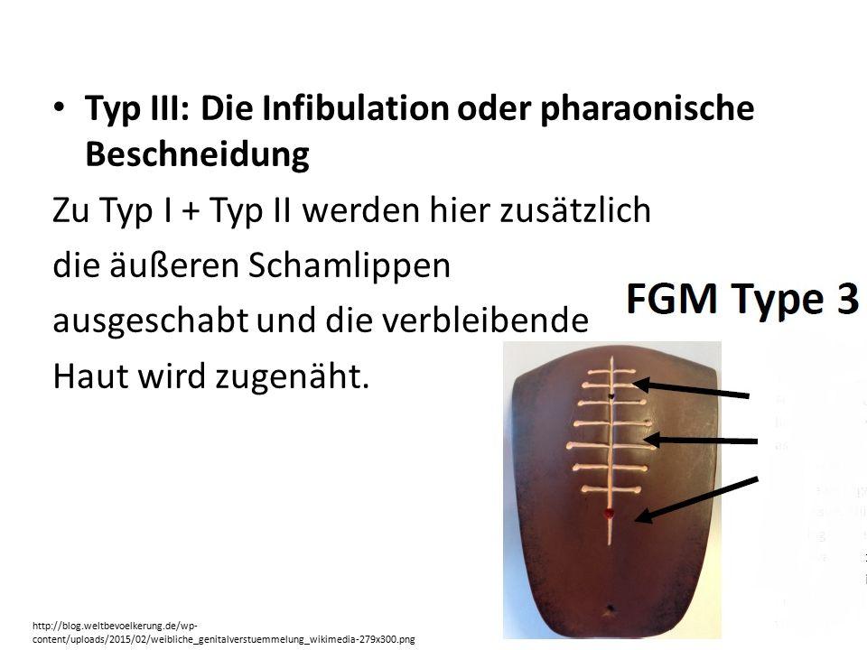 Typ III: Die Infibulation oder pharaonische Beschneidung