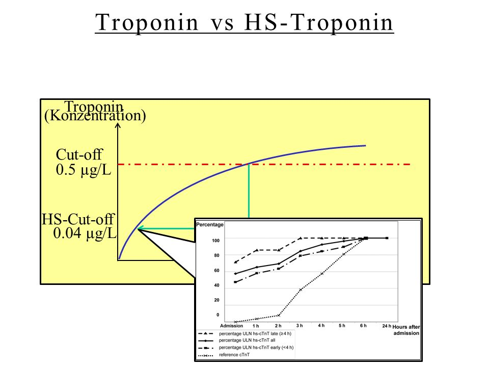 Troponin vs HS-Troponin