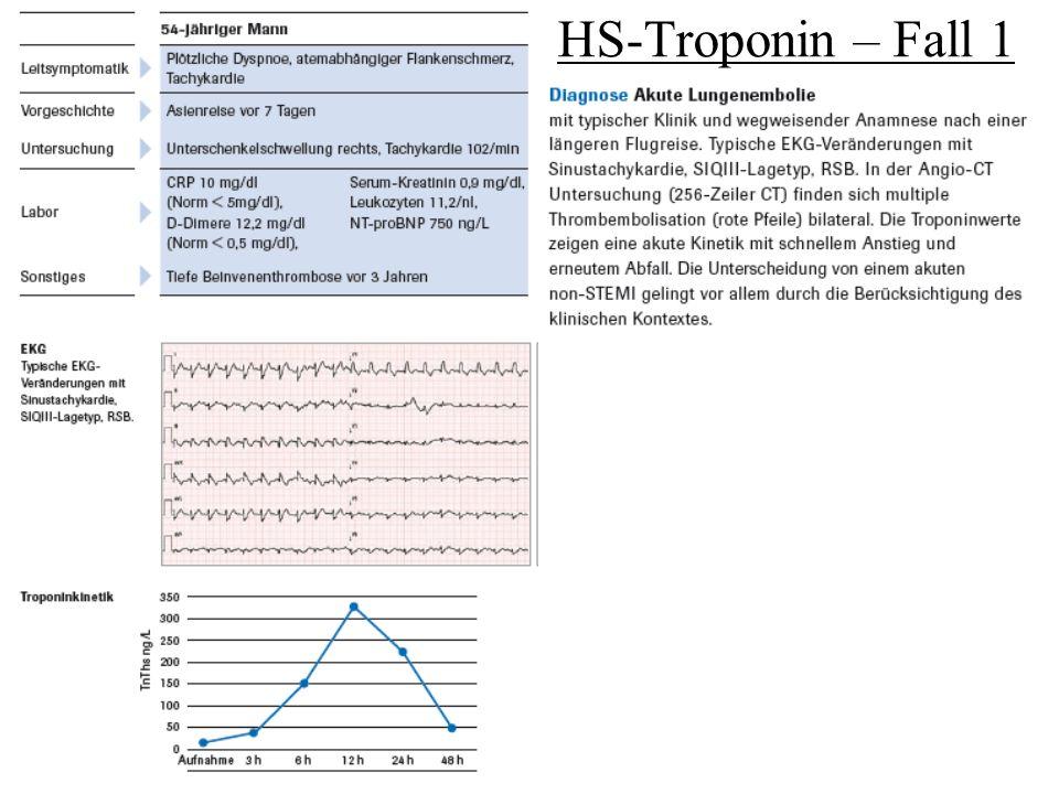 HS-Troponin – Fall 1