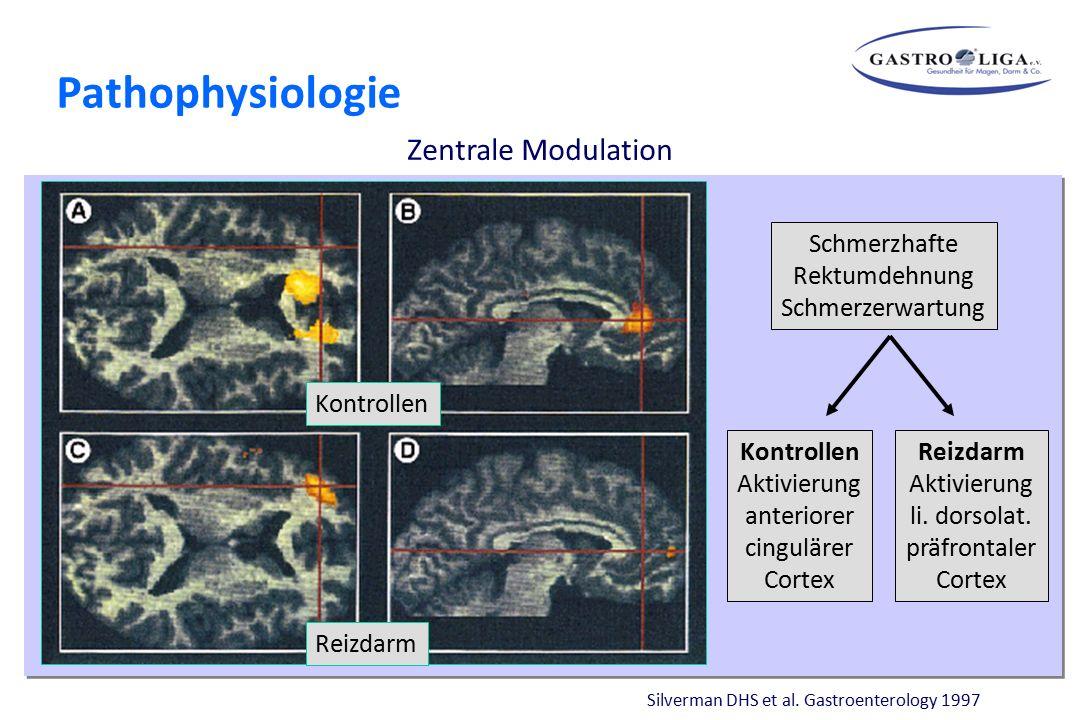 Theorien zur Entstehung funktioneller Magendarmerkrankungen Zentrale Modulation