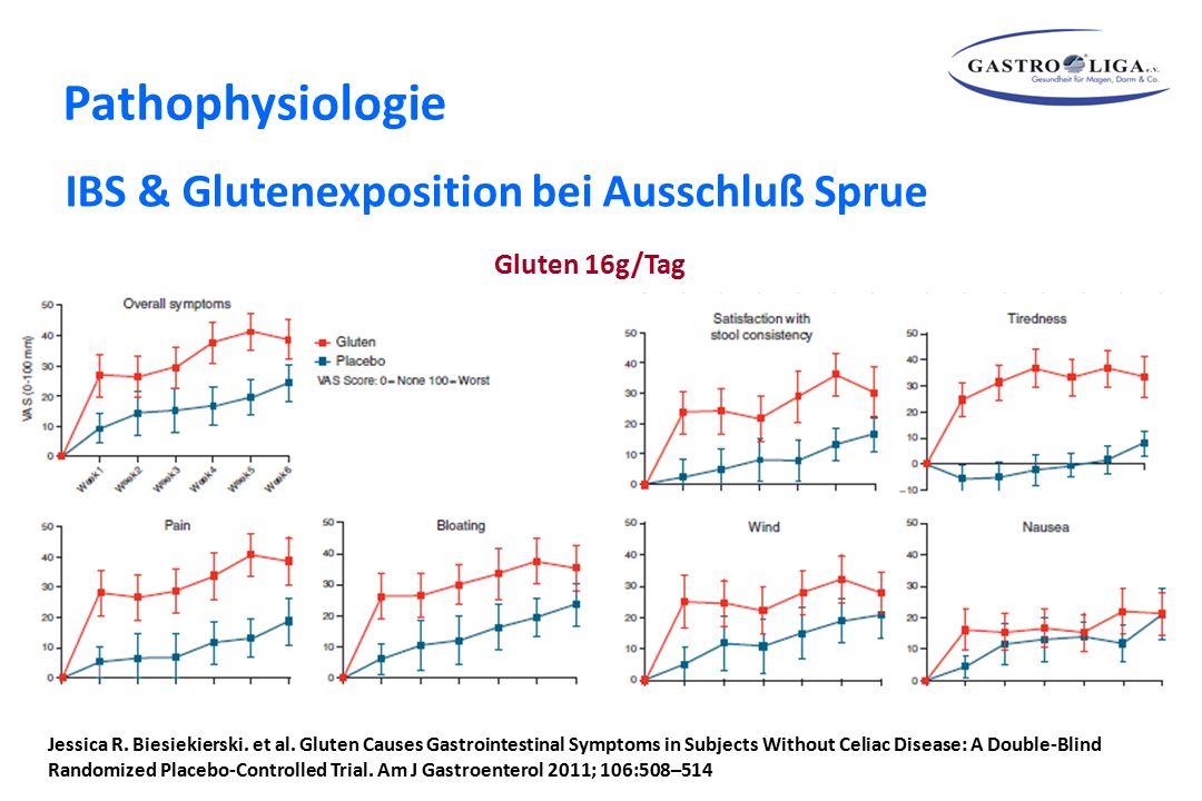 Pathophysiologie IBS & Glutenexposition bei Ausschluß Sprue