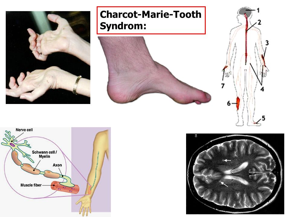 Charcot-Marie-Tooth Syndrom: