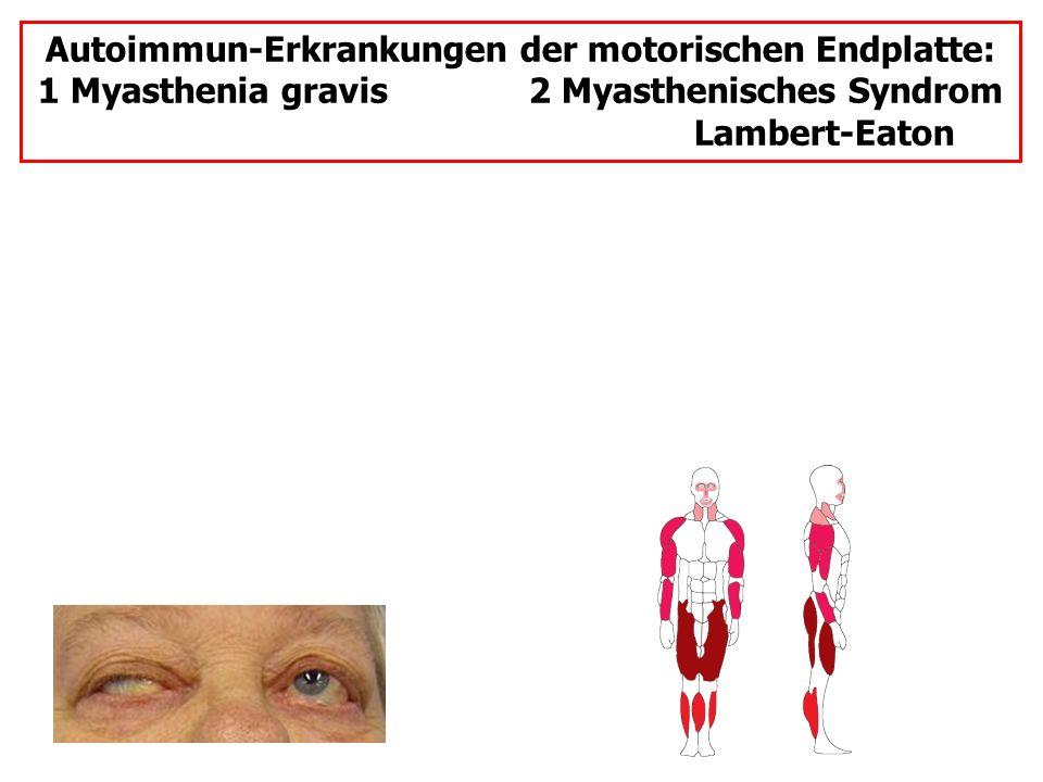 Autoimmun-Erkrankungen der motorischen Endplatte: 1 Myasthenia gravis 2 Myasthenisches Syndrom