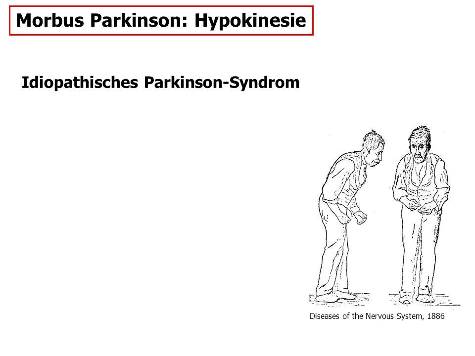 Morbus Parkinson: Hypokinesie
