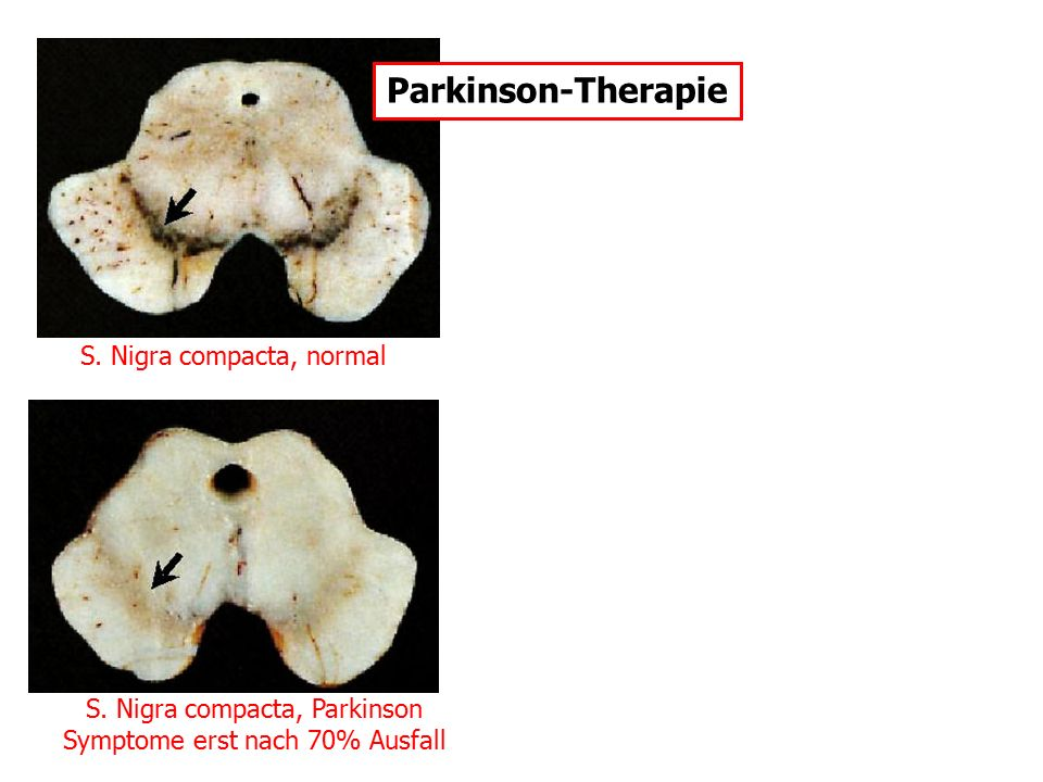 Parkinson-Therapie S. Nigra compacta, normal