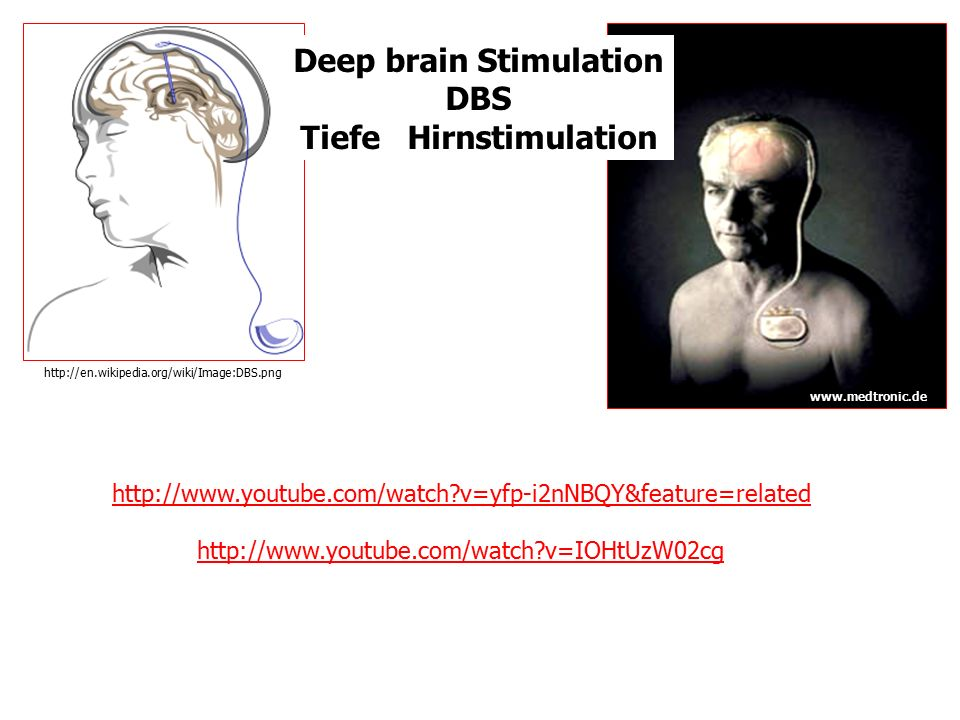 Deep brain Stimulation Tiefe Hirnstimulation