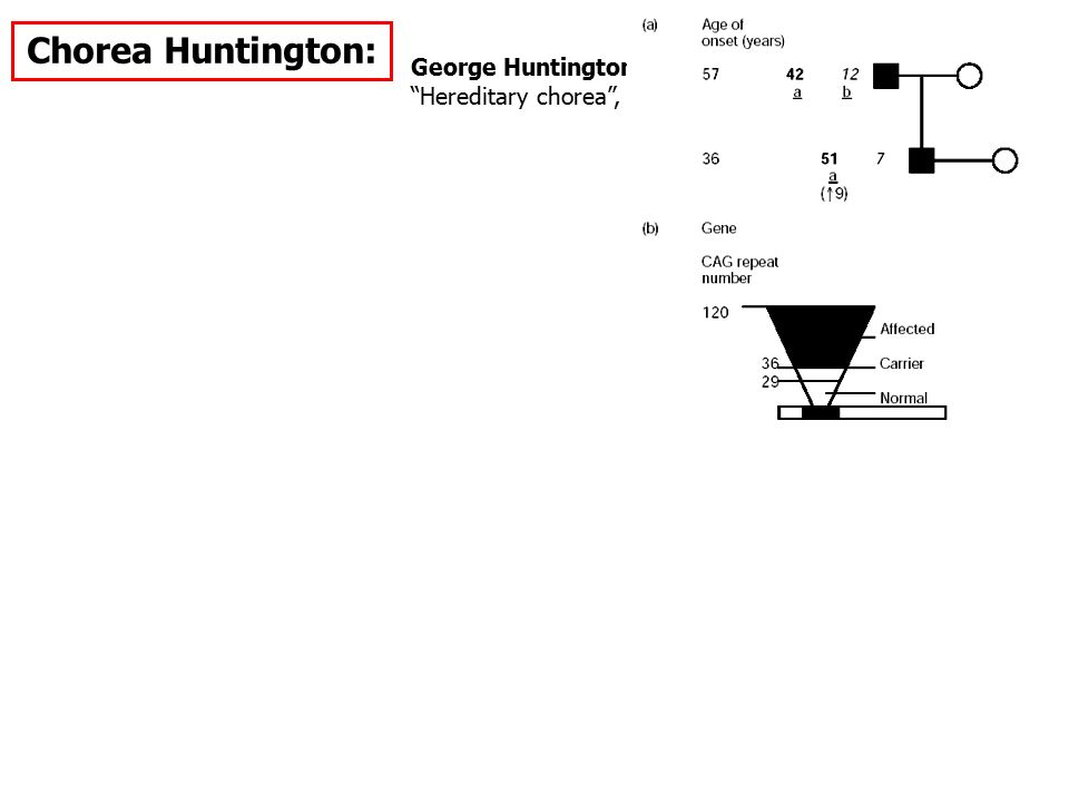Chorea Huntington: George Huntington Hereditary chorea , 1872