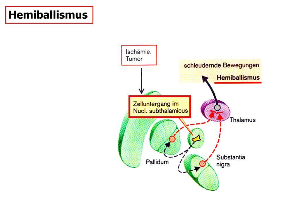 Hemiballismus SCHiZOPHRENIE: D2-R-Antagonisten lange engesetzt bewirkt im Striatum eine Aufregulation der D1-R.