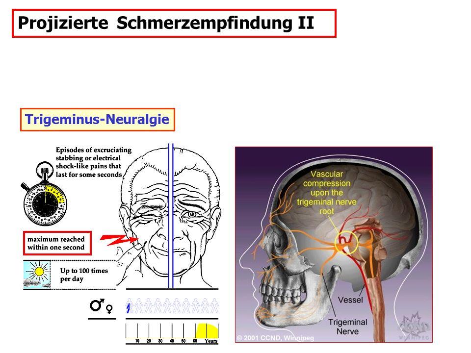 Projizierte Schmerzempfindung II