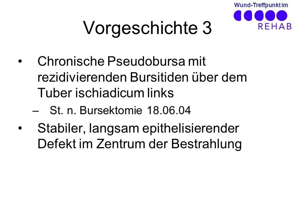 Vorgeschichte 3 Chronische Pseudobursa mit rezidivierenden Bursitiden über dem Tuber ischiadicum links.