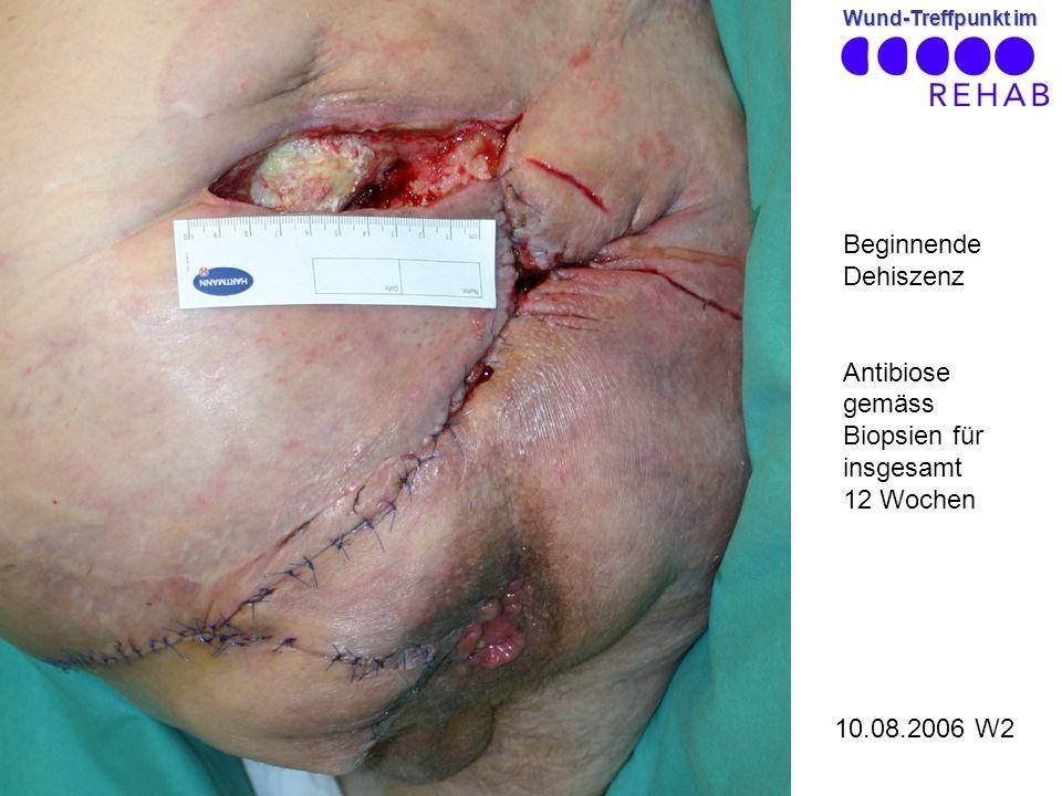 Beginnende Dehiszenz Antibiose gemäss Biopsien für insgesamt 12 Wochen 10.08.2006 W2