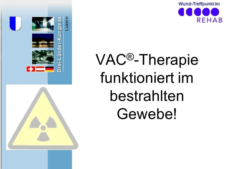 VAC®-Therapie funktioniert im bestrahlten Gewebe!