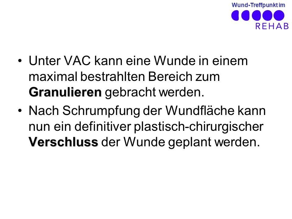 Unter VAC kann eine Wunde in einem maximal bestrahlten Bereich zum Granulieren gebracht werden.