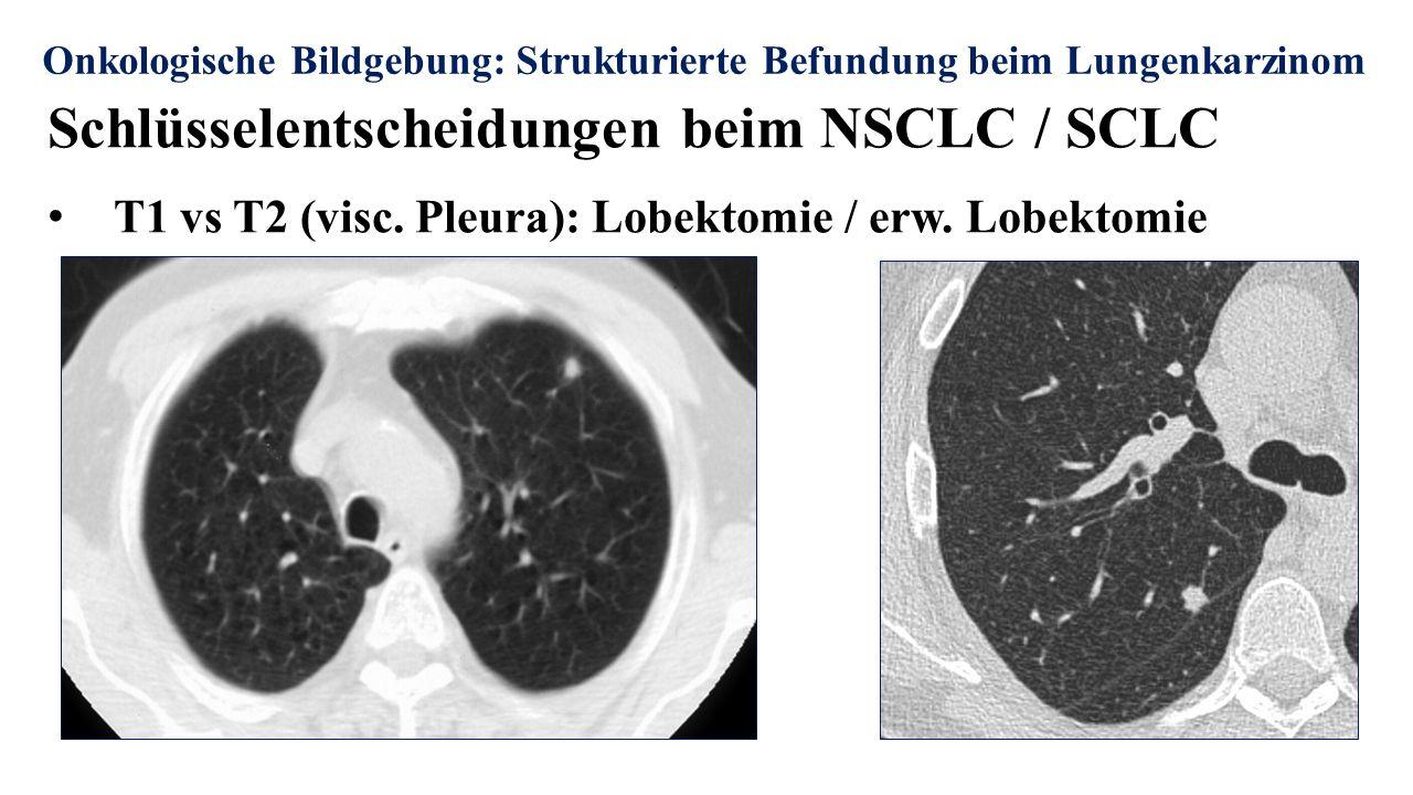 Schlüsselentscheidungen beim NSCLC / SCLC