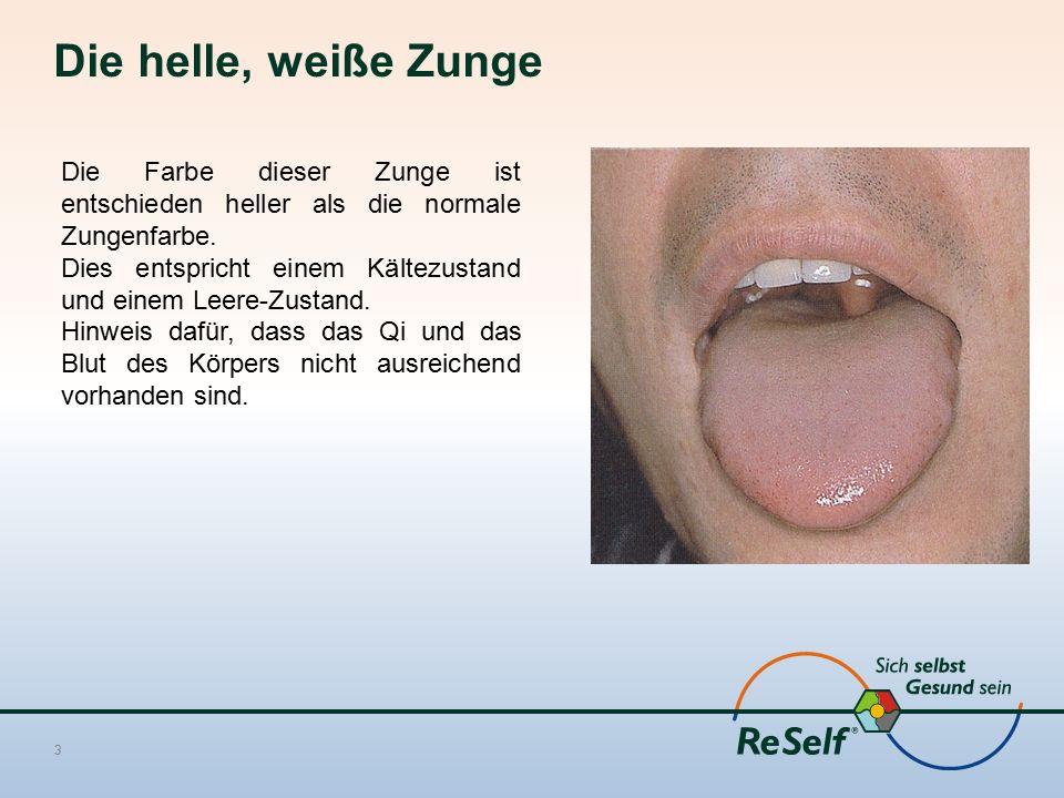 Die helle, weiße Zunge Die Farbe dieser Zunge ist entschieden heller als die normale Zungenfarbe.